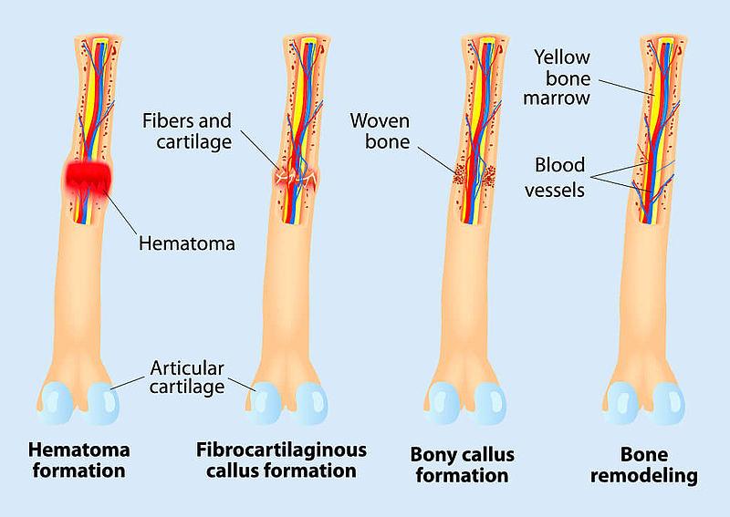 Avicenna Alliance Improving The Quality Of Bone Tissue